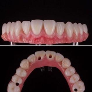 4-implant-uygulama-hibrit-protez-damak-veda Damak kullanmak kaderiniz değil
