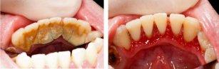 gemlik-dis-tasi-temizligi Dişlerimizi temizletmek dişlerimize zarar verir mi?