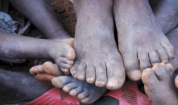Shoe Donation Program