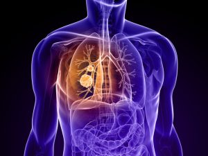 Translate Bio Continues Test Of Inhaled Cystic Fibrosis mRNA Despite Previous Regression
