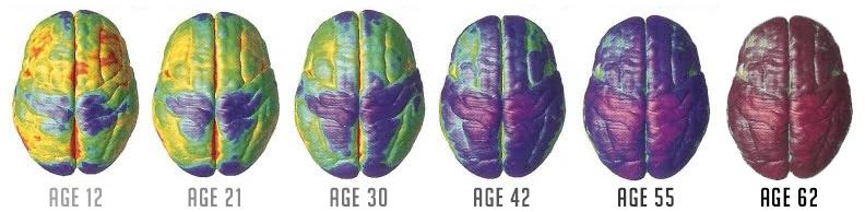 brain-changes-as-we-age.jpg (792×194)
