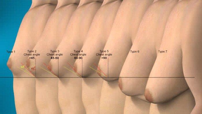 riduzione seno uomo