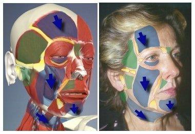 lifting endoscopico: linee di caduta dei tessuti del volto