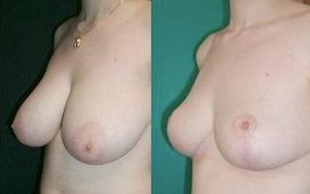 mastoplastica riduttiva foto prima e dopo