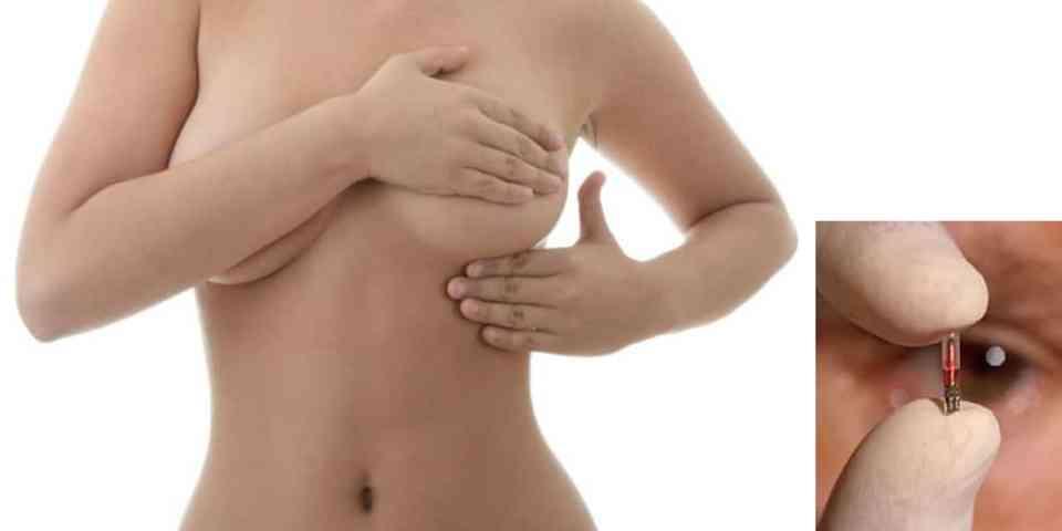 protesi mammarie microchip - Dr. Alessandro Gennai