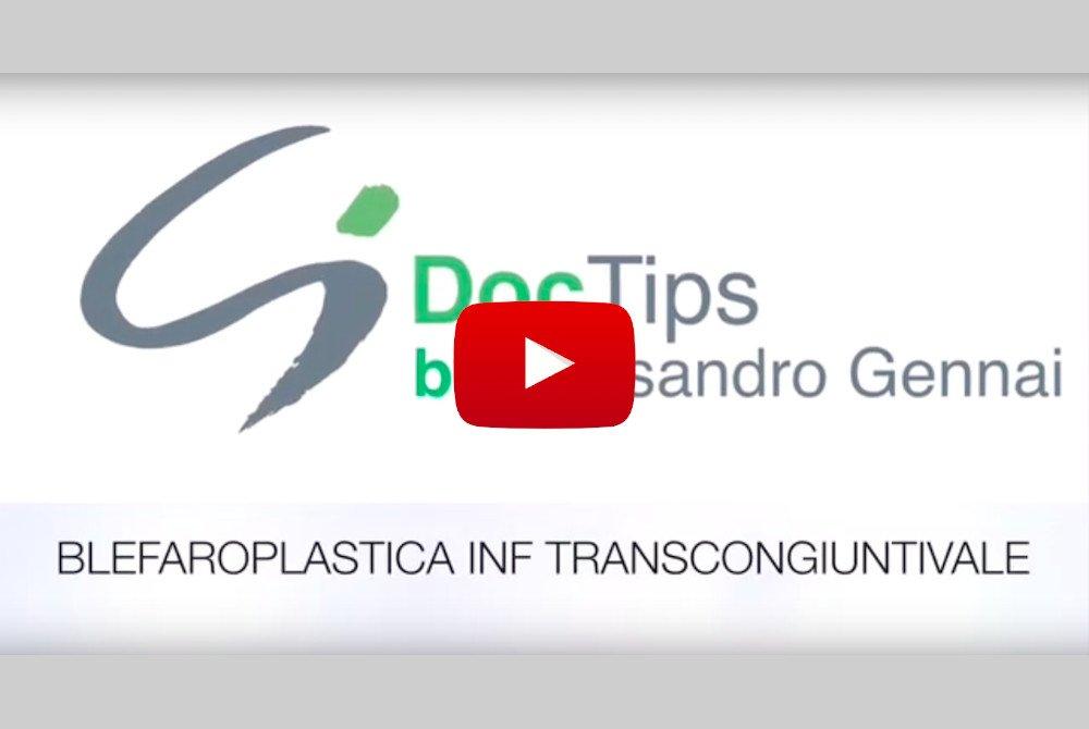 blefaroplastica inferiore transcongiuntivale doctips