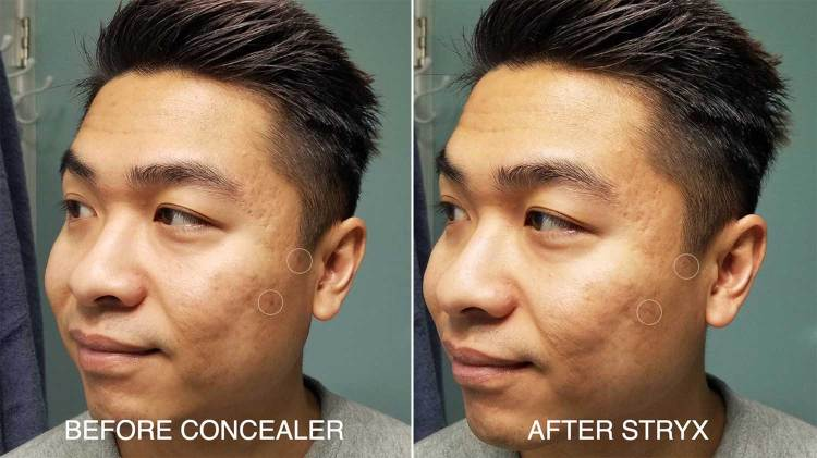Before And After Stryx Concealer