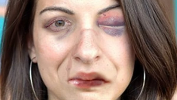 Anita Sarkeesian in Bendilin Spurr's face punch game