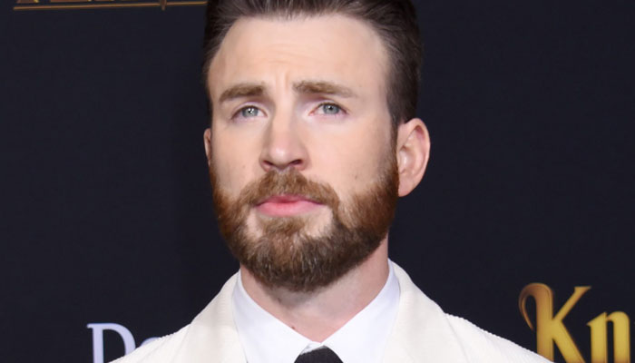 352238 604872 updates Chris Evans shares images of bruised arms while working on Netflix movie