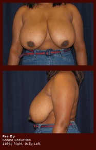Breast Reduction (Pre-op)