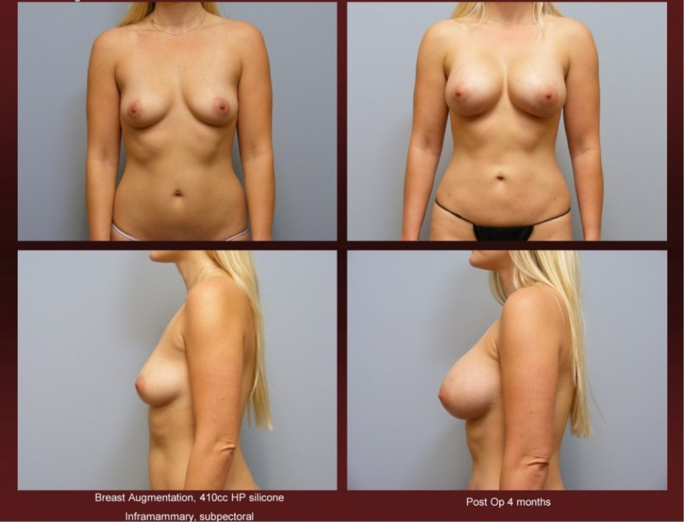 Breast Augmentation at Georgetown Plastic Surgery
