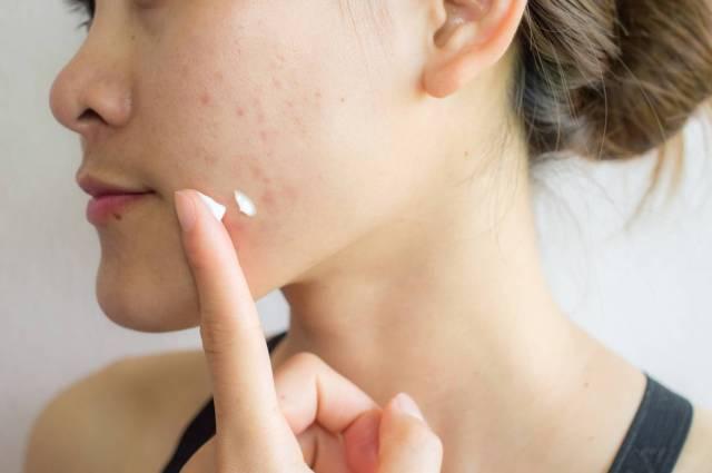 soin peau visage
