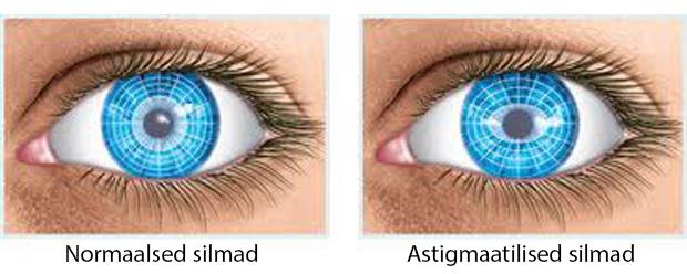 normaalsed vs. astigmaatilised