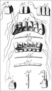 Teeth Restoration Illustration, Public Domain