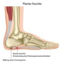 Plantar Fascitis (Entzündung des Plantaraponeurose Bandes)