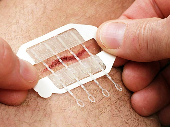 Zipstitch Closes Wounds Without Stitches