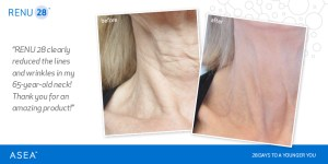 Picture of changes in aging neck before and after using Renu28