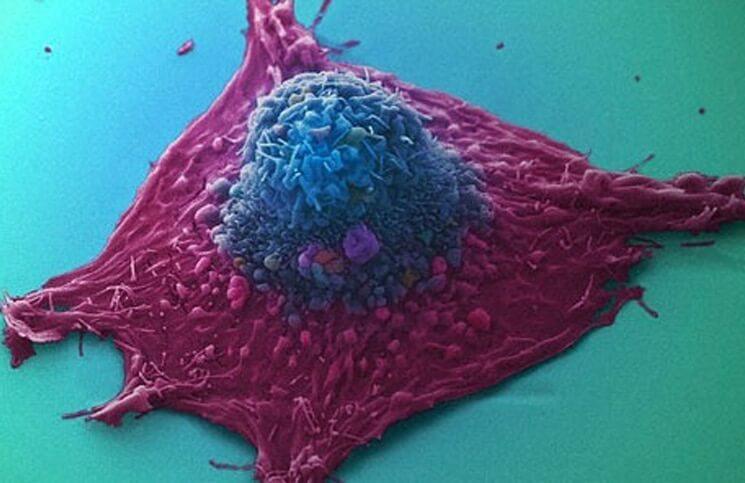 Kanker cel