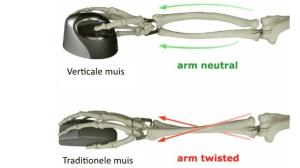 RSI klachten ergonomische muis