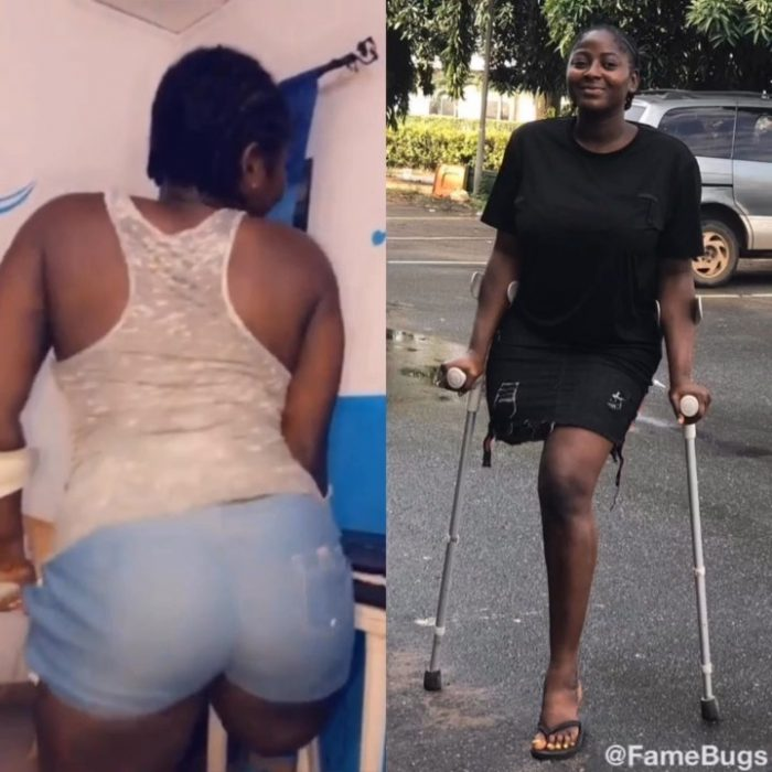 VIDEO Of A Pretty Lady With Her Right Leg Amputated ...