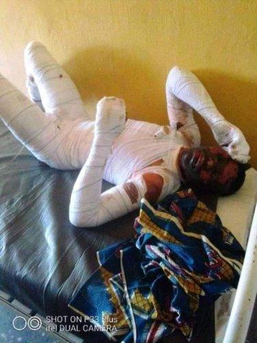 Lady Sets Boyfriend Ablaze 4 Reportedly Paying A Girls Bride Price - Watch