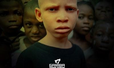 Albino by Gariba