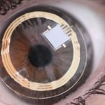 Google unveils 'smart contact lens' to determine glucose levels