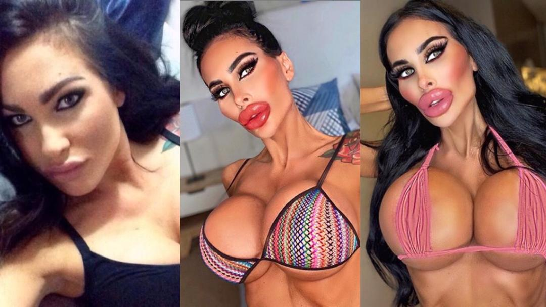 Plastic Surgery Gone Wrong: Nurse Looks Like 'Doll' After Spending £55k On Body Enhancement