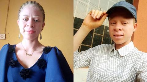 """I was body-shamed until I nearly committed suicide"" – Woman with Albinism shares story on journey to self-love"
