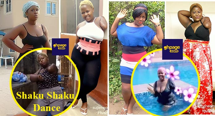 Video: Nigerian actress has lost a hand, but never her gratitude and can-do spirit