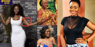 Akua GMB allegedly consults Dr. Obengfo for plastic surgery