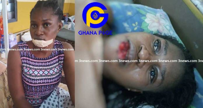 Photos: Jealous main girlfriend chews the lips of her boyfriend's side chic during a fight in Takoradi