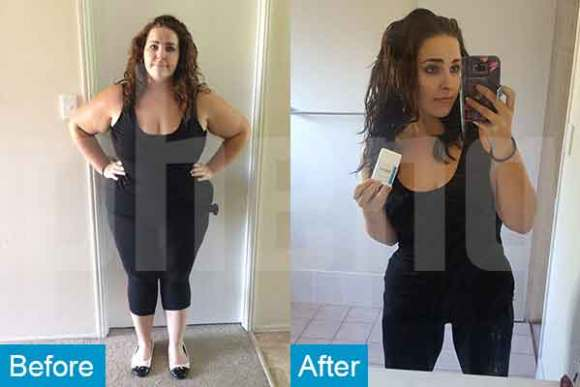 before and after weight loss success stories