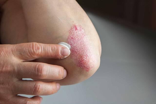 Σημάδια στο δέρμα και στα νύχια που δείχνουν καρκίνο, διαβήτη, έρπη
