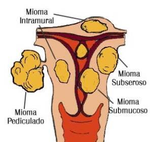 Los Miomas miomas 1 1