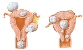Tumor Anexial tumor anexial