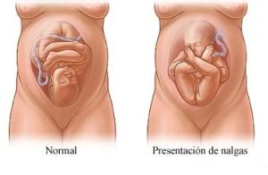 posición del feto  Posición del feto posici  n del feto 1