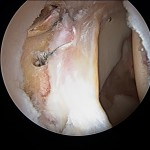 View of Labral Repair. ©2014 Ginger Garner. All rights reserved.