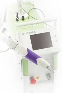 肝斑治療レーザートーニング