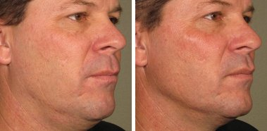 before after ultherapy results full face 11