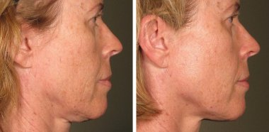 before after ultherapy results full face 15