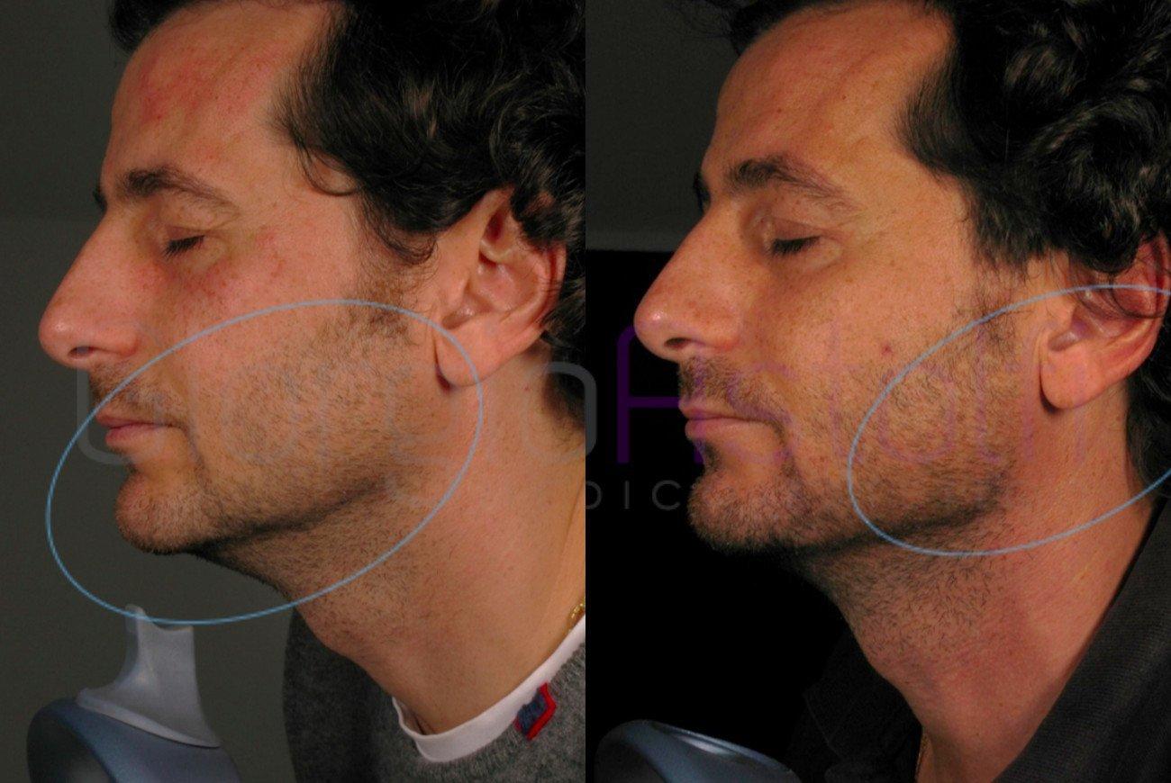 ridefinizione del contorno mandibolare 1