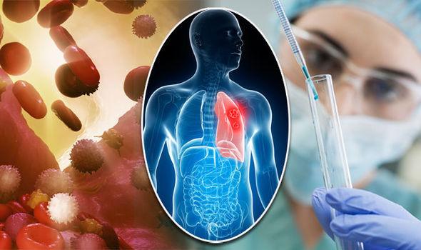 IFO, Tumore del polmone, speranze da nuovo farmaco a bersaglio molecolare