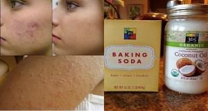 Αυτό θα συμβεί αν πλένετε το πρόσωπό σας με λάδι καρύδας & μαγειρική σόδα! Εξαφανίζει ρυτίδες, ακμή, λιπαρότητα!