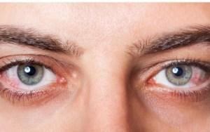 Παρατηρήστε την εικόνα και δείτε αν έχετε βλάβη στα μάτια
