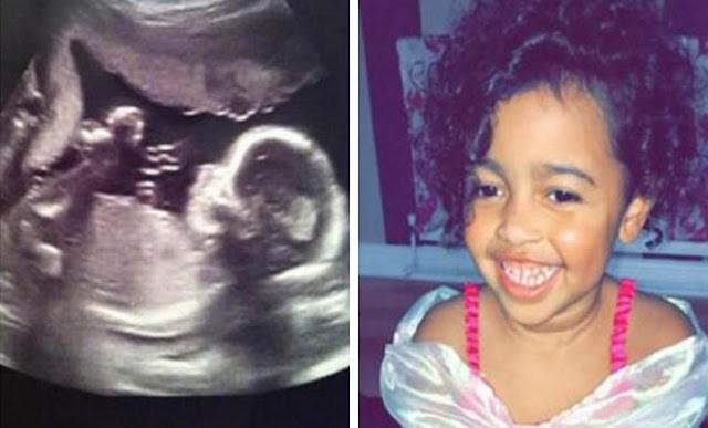 Έγκυος γυναίκα βλέπει στον υπέρηχο έναν «άγγελο»