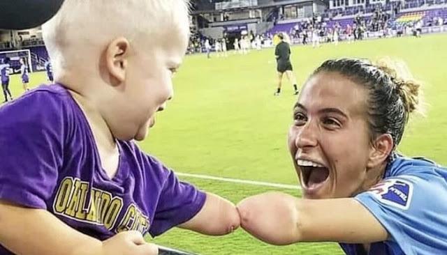 Read more about the article Παίκτρια ποδοσφαίρου χωρίς χέρι συναντά μπόμπιρα με την ίδια ιδιαιτερότητα -Η δυνατή φωτογραφία που έγινε viral