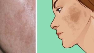 Πανάδες: 6 Φυσικοί τρόποι για να αντιμετωπίσετε τον αποχρωματισμό του δέρματος