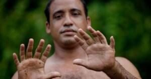 Read more about the article «Τα 24 δάκτυλά μου είναι η μεγαλύτερη ευλογία της ζωής μου»: Ο τέλειος εξαδάκτυλος που ζει από τα χέρια του