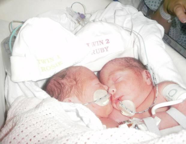 οι νεογέννητες Ruby και Rosie το 2012